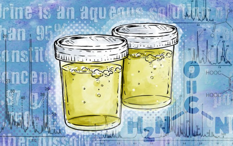 Urine-In-Cups-750x430-1Ae